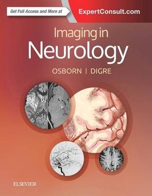 Imaging in Neurology
