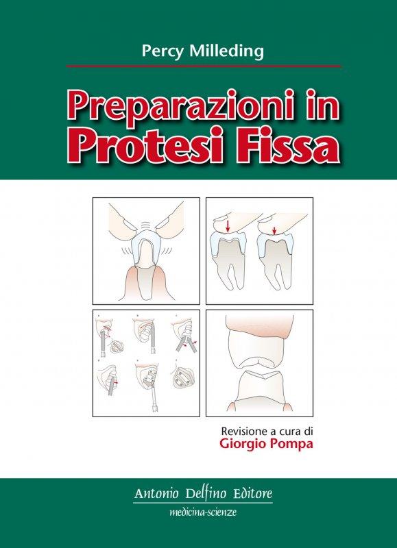 Preparazioni in protesi fissa