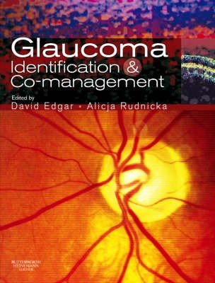 Glaucoma Identification and Co-Management