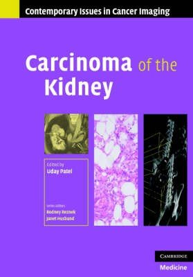 Carcinoma of the Kidney