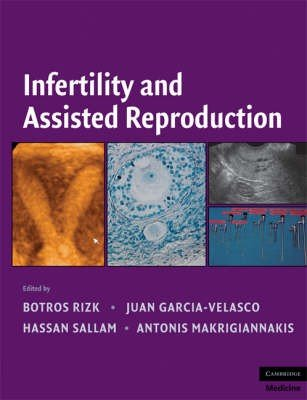 Infertility and Assisted Reproduction