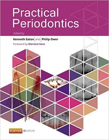 Churchill's Textbook of Periodontics