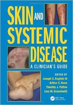 Skin and Systemic Disease