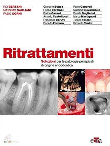 Ritrattamenti. Soluzioni per le patologie periapicali di origine endodontica