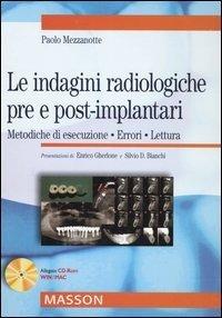 Le indagini radiologiche pre e post-implantari. Metodiche di esecuzione. Errori. Lettura