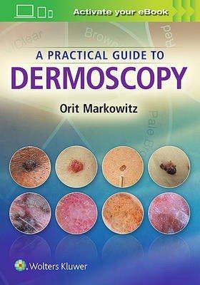 A Practical Guide to Dermoscopy