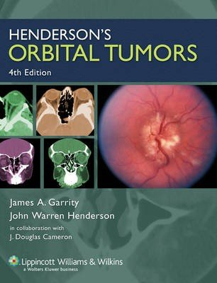 Henderson's Orbital Tumors