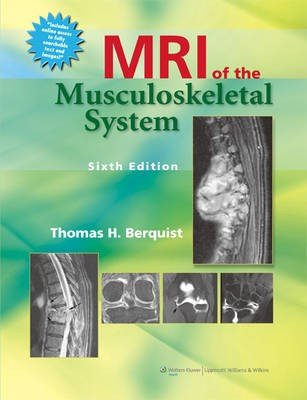MRI of the Musculoskeletal System