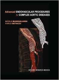 Advanced Endovascular Procedures for Complex Aortic Diseases