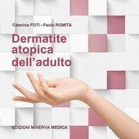 Dermatite atopica dell'adulto