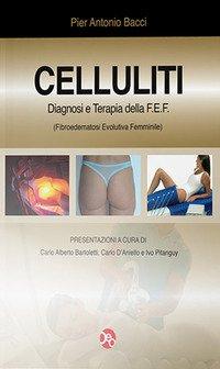 Celluliti 2012. Diagnosi e terapia della FEF (fibroedematosi evolutiva femminile)