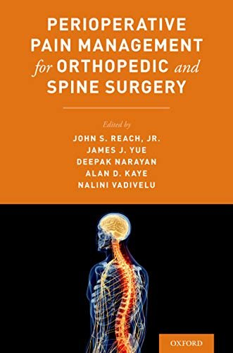 Perioperative Pain Management for Orthopaedic and Spine Surgery