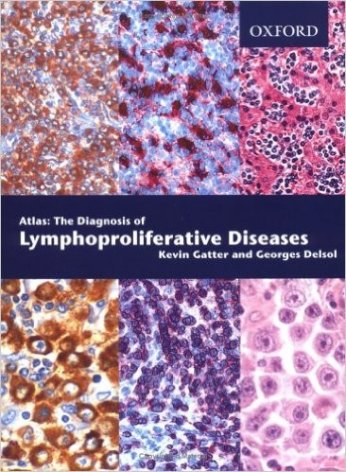 The Diagnosis of Lymphoproliferative Diseases