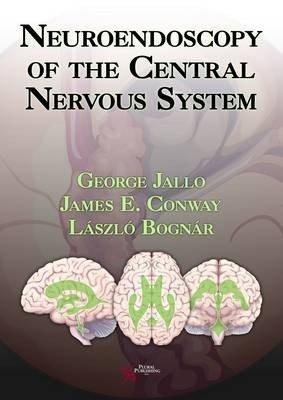 Neuroendoscopy of the Central Nervous System