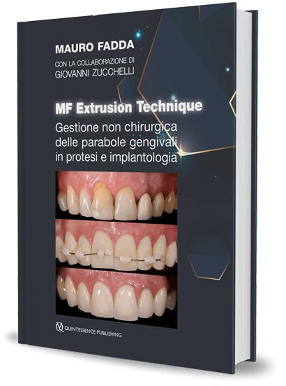 MF Extrusion Technique. Gestione non chirurgica delle parabole gengivali in protesi e implantologia