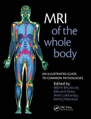 MRI of the Whole Body