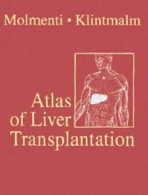 Atlas of Liver Transplantation