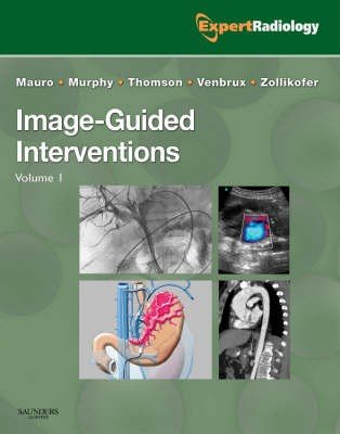 Image-Guided Interventions
