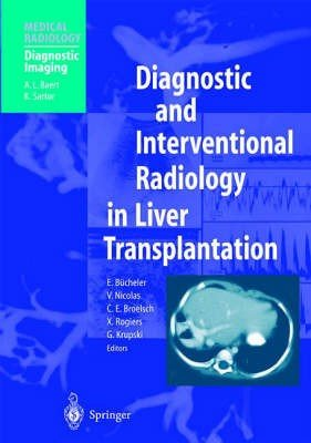 Diagnostic and Interventional Radiology in Liver Transplantation