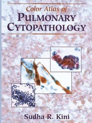 Color Atlas of Pulmonary Cytopathology