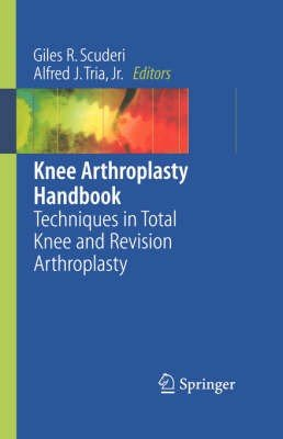 Knee Arthroplasty Handbook