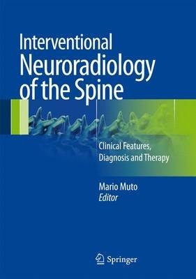 Interventional Neuroradiology of the Spine