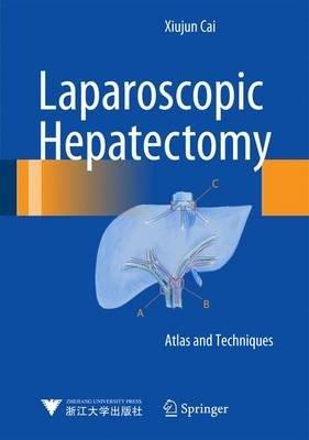 Laparoscopic Hepatectomy