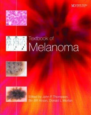 Textbook of Melanoma