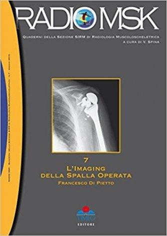 L' imaging della spalla operata