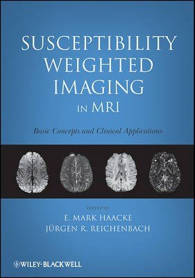 Susceptibility Weighted Imaging in MRI
